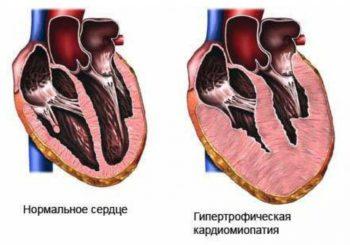 Изменение стенок сердца при гипертрофической кардиомиопатии